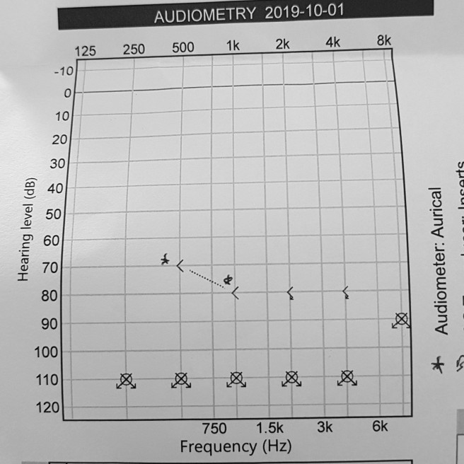 The results of an audiogram test. Symbols are marked across the 110dB marker,