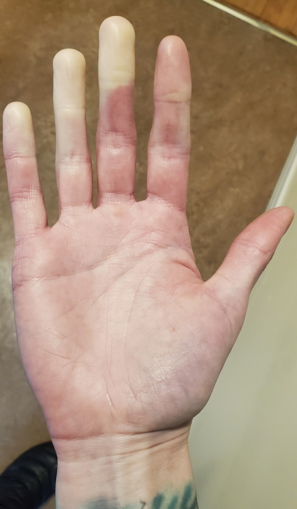 My left hand showing pallor in the pinky, ring, and middle fingers.